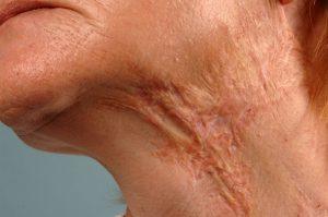 Litteken hals agv brandwond. Na 1 behandeling tattoeage