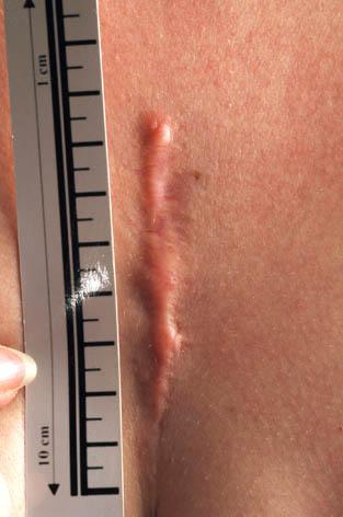 Litteken thorax voor behandeling